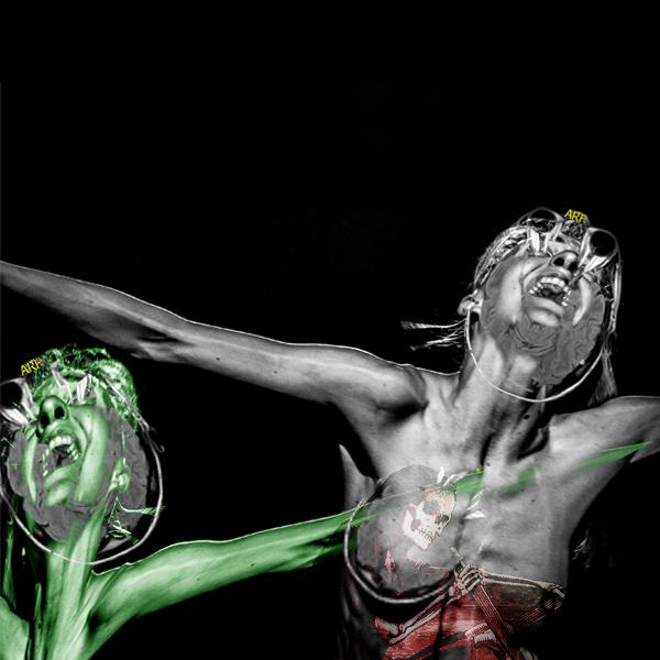 MRI MS (2015-)